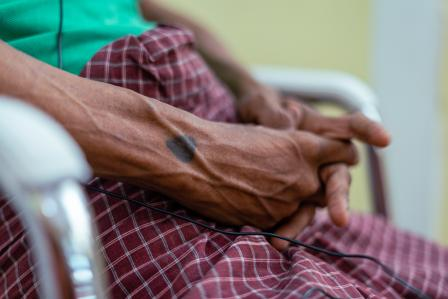 Doctors Without Borders: Ensure unimpeded access to healthcare in Myanmar